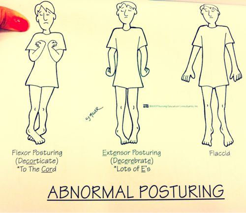 Another great way to remember Decorticate Posturing is that you turn inwards toward your CORE. Also, abnormal posturing occurs with increased intracranial pressure. It's a great way to observe for changes in LOC.