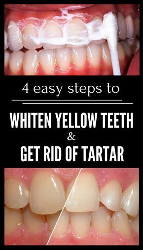 4 Easy Steps to Whiten Yellow Teeth and Get Rid of Tartar