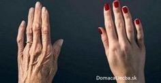 Úžasný recept na to, aby vaše ruky prestali odhaľovať váš vek