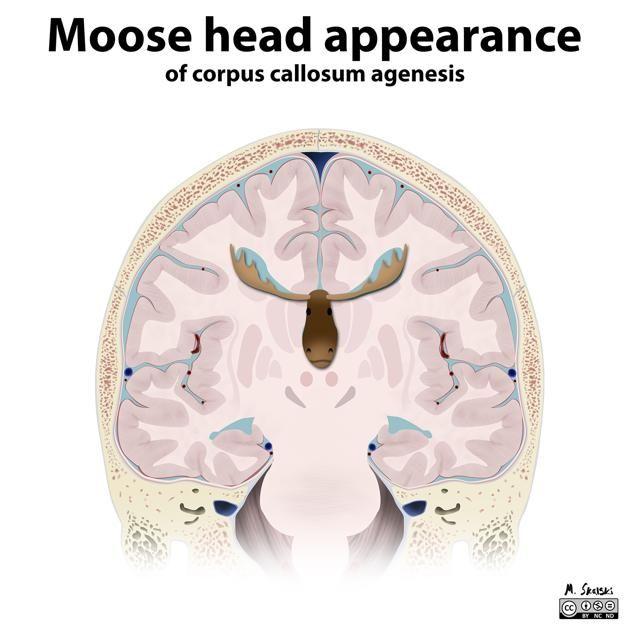 The moose head appearance referes to the lateral ventricles in coronal projection in patients with dysgenesis of the corpus callosum. The cigulate gyrus is everted into narrowed and elongated frontal horns.   An alternative name is the viking helmet sign.   http://radiopaedia.org/articles/moose-head-appearance