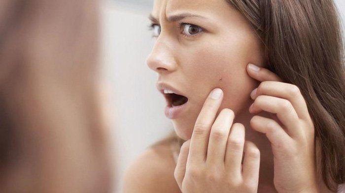 Handphone Bisa Bikin Jerawat? Gak Cuma Itu, Nih 7 Penyebab Tak Terduga Tonjolan Merah di Wajah