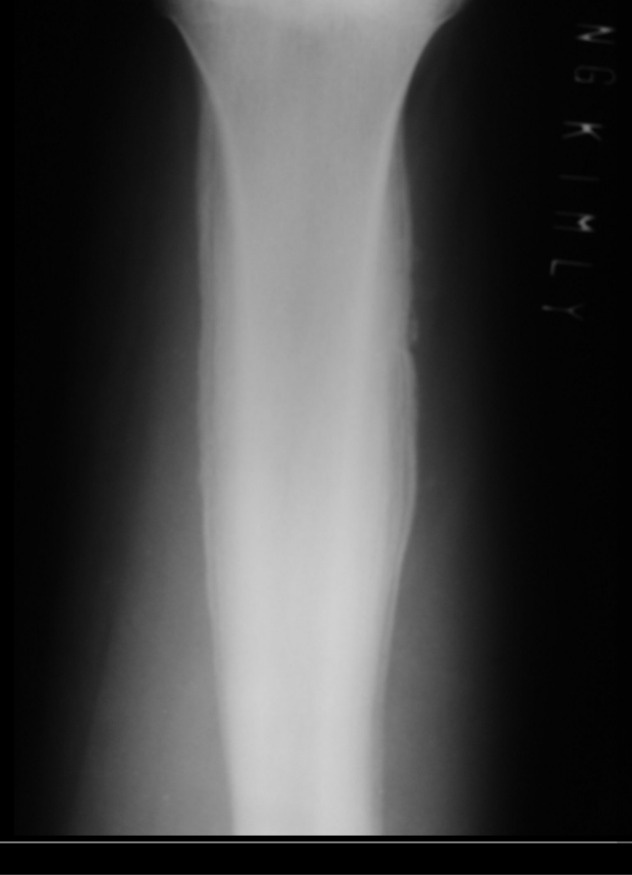 onion skin pattern of ewing sarcoma | tumors - radiology ...