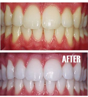 Put a tiny bit of toothpaste into a small cup, mix in one teaspoon baking soda plus one teaspoon of hydrogen peroxide, and half a teaspoon water. Thoroughly mix then brush your teeth for two minutes. Remember to do it once a week until you have reached the results you want. Once your teeth are good and white, limit yourself to using the whitening treatment once every month or two. (Hmm I wonder if this works)