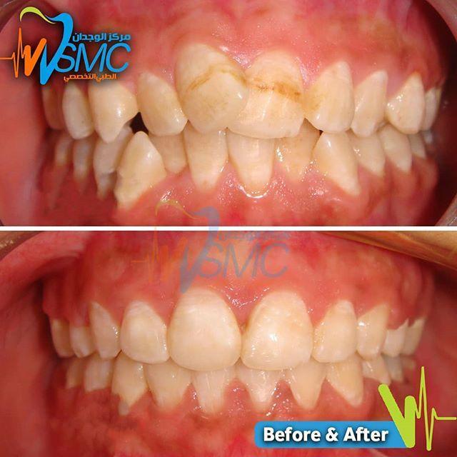 إحدى حالات تقويم الأسنان التي تم علاجها لدينا بإيدي اختصاصي تقويم الأسنان الدكتور محمد عطيه لحجز موعدكم 17005666 33336555 One Of T Food Breakfast Vegetables