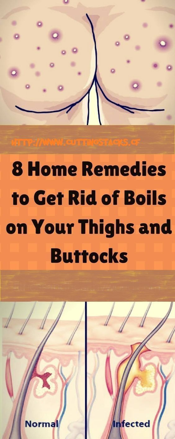 Boils appear because sweat glands and hair follicles get infected. Certain germs get into these areas multiplying excessively causing the appearance of ...