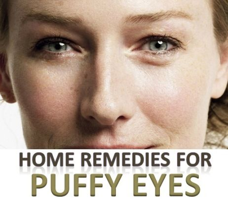 how to get rid of puffy eyes home remedies
