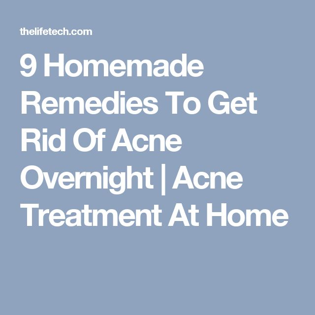 9 Homemade Remedies To Get Rid Of Acne Overnight | Acne Treatment At Home