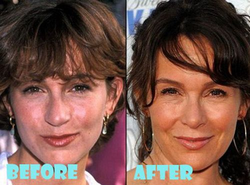 Jennifer Grey Plastic Surgery Before and After Nose Job