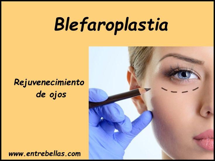 Conoce todo sobre la #Blefaroplastia, la #cirugíadepárpados para el #rejuvenecimiento de ojos.