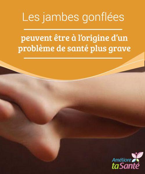 Les #jambes gonflées peuvent être à l'origine d'un problème de #santé plus grave   Dans cet article, nous vous invitons à découvrir les différents #problèmes qui #peuvent survenir lorsque l'on souffre #d'inflammation dans les jambes.