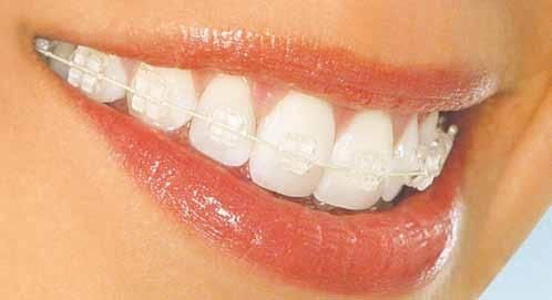عملية تركيب الاسنان الثابتة فى الاردن