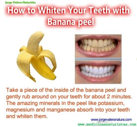banana teeth whitner
