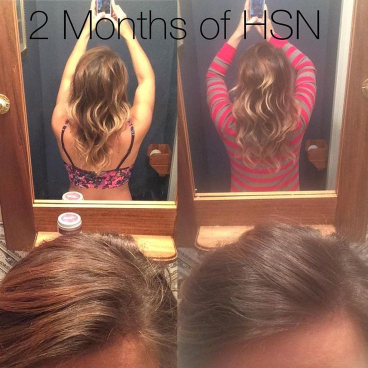 Before and After of my progress after taking my Hair, skin