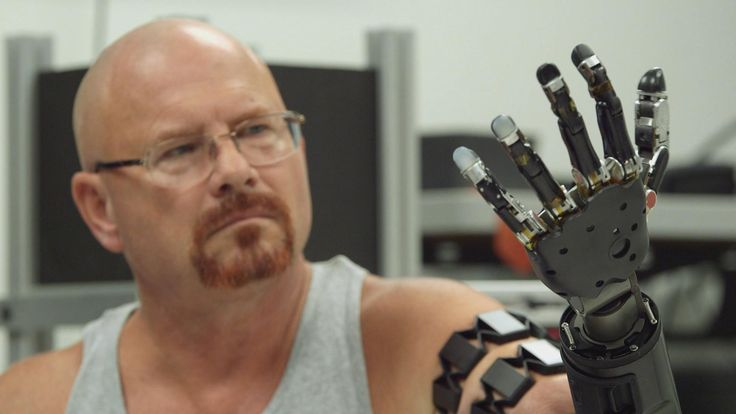 Johnny Matheny is the first person to attach a mind-controlled prosthetic limb directly to his skeleton.