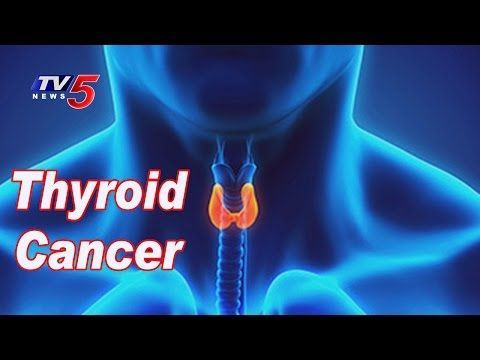 Causes And Symptoms OF Thyroid Cancer | Omega Hospitals | Health File | TV5 News - WATCH VIDEO HERE -> http://bestcancer.solutions/causes-and-symptoms-of-thyroid-cancer-omega-hospitals-health-file-tv5-news    *** symptoms of thyroid cancer ***   For More Updates ► TV5 News Live ► Subscribe to TV5 News Channel: ►  Download TV5 Android App: ►Our Website : ► Like us on Facebook: ► Follow us on Twitter: ► Circle us on TV5 News Channel G+: ► Follow us on Pinterest