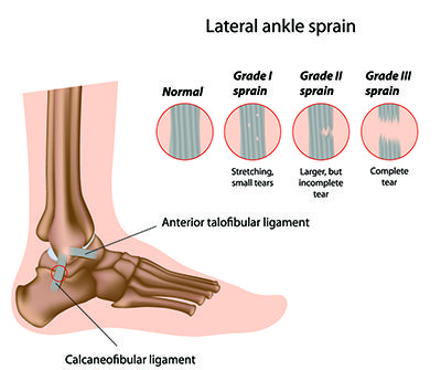 Ankle sprains have a habit of showing up unexpected. Dr. Timothy Barry of Family