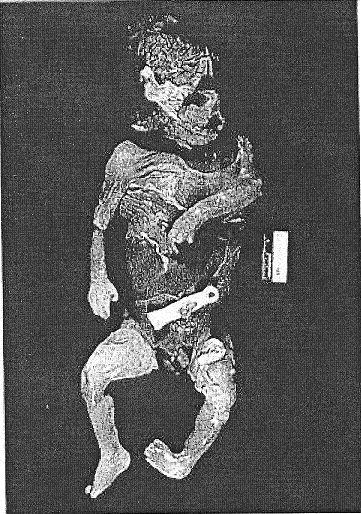 Leaked Autopsy Photos Laci Peterson laci peterson crime scene - bing ...