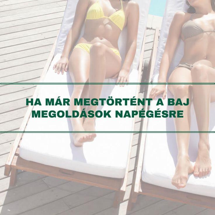 A gyönyörű nyári napsütéses időben nagyon gyakori probléma a napégés. Bár a tünetek többnyire pár nap alatt enyhülnek, minden egyes napégéssel növeljük a bőrrák kockázatát. Ha megfelelően gondoskodunk bőrünk védelméről, akkor elkerülhető a baj. Cikkünkben azonban összegyűjtöttük, mit tegyünk, ha minden óvatosságunk ellenére mégis megtörténne a baj.
