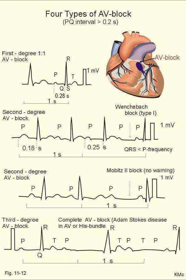 Types Of Mangoes Try Them All: Four Types Of AV Block Nurses, Nursing