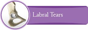 Labral Tears- Dr.Byrd is one of the best!
