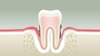 Le seul traitement officiel proposé pour assainir d'une façon musclée l'invasion parodontale est une antibiothérapie de dix jours avec les inconvénients que cela comporte, y compris celui d'une insomnie sévère possible pendant...