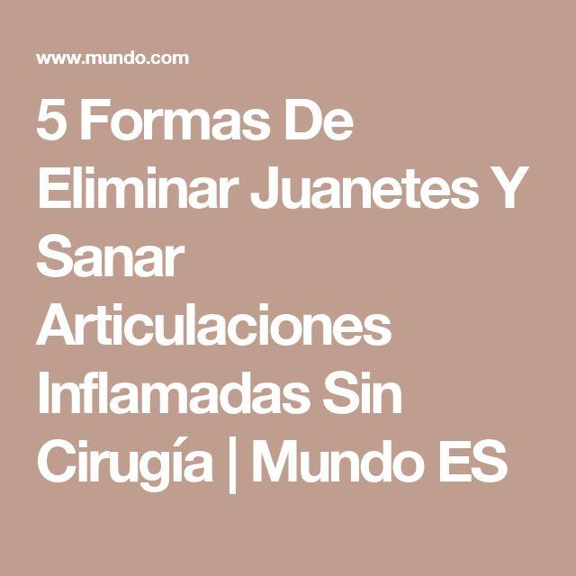 5 Formas De Eliminar Juanetes Y Sanar Articulaciones Inflamadas Sin Cirugía | Mundo ES