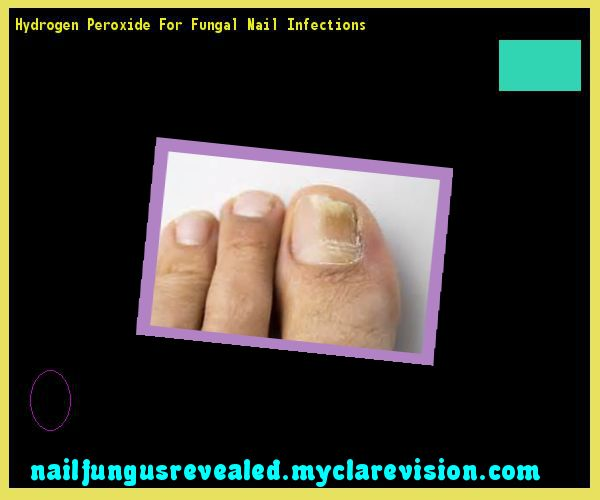 Hydrogen peroxide for fungal nail infections - Nail Fungus Remedy. You have nothing to lose! Visit Site Now