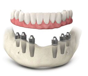Bone grafts for dental implants