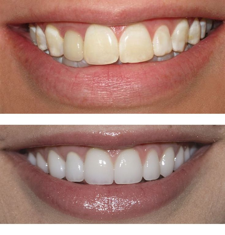 Thanking of getting veneers on your teeth? Learn the difference between porcelain and resin veneers.