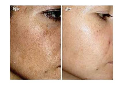 How To Lighten Dark Skin Pigmentation Naturally
