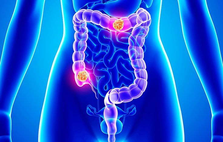 The Symptoms Of Colon Cancer That Every Young Woman Should Know  http://www.womenshealthmag.com/health/colorectal-cancer-signs?utm_campaign=DailyDose