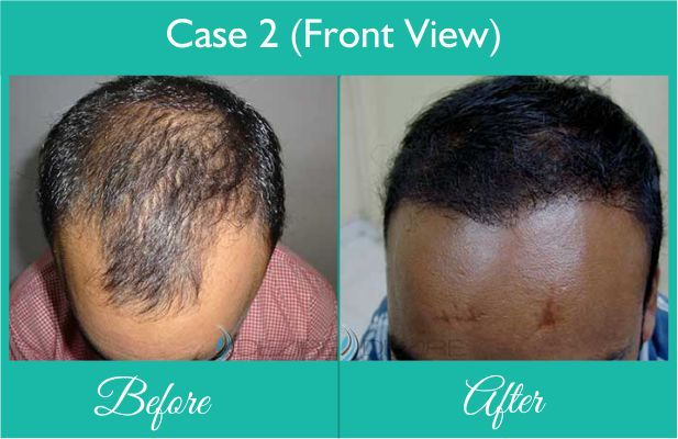Best Hair Transplant done at Dezire Clinic Pune. Visit our website to know details of Best Hair Transplant Cosmetic Surgery in India, Cost of Best Hair Transplant For Men. Call on 9222122122 for free consultation.