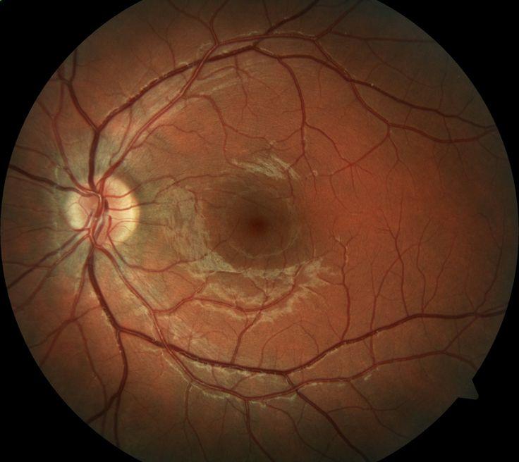 Retinal Detachment - Baton Rouge, LA Opthamologist Retina - presumed ocular histoplasmosis