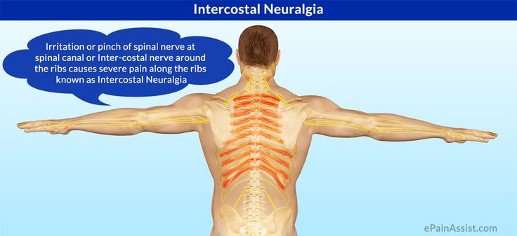 Intercostal Neuralgia is caused due to compression of nerve in thoracic or the abdominal area and it is a rare condition in which there is pain along the intercostal nerves. Know its Symptoms, Causes and Treatment.