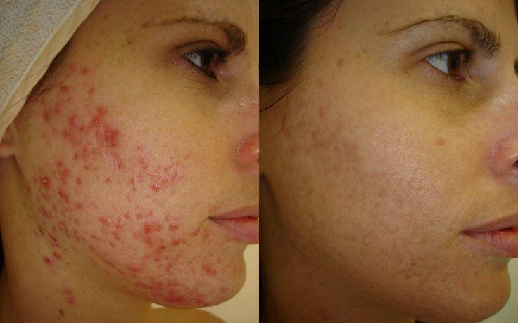 Really enjoyed led light and acne