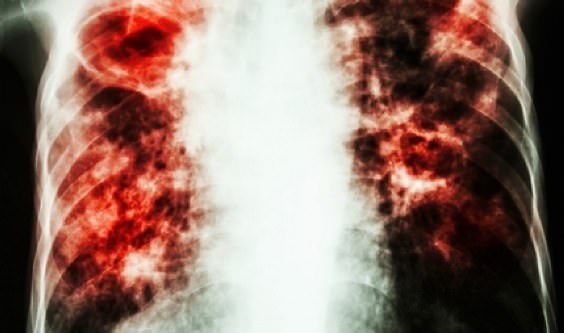 How to use home remedies to treat pulmonary fibrosis disorder effectively? Have you ever confronted challenges relaxing? Do you have a perpetual dry h...