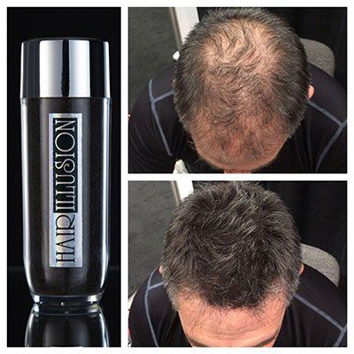 Hair Loss Concealer is the new way to hide the bald areas and offer a nice, Thick Hair in less than a minute! We have put together a collection of the Best Hair Loss Concealers available in the market today based on Customer Reviews and number of Products sold.