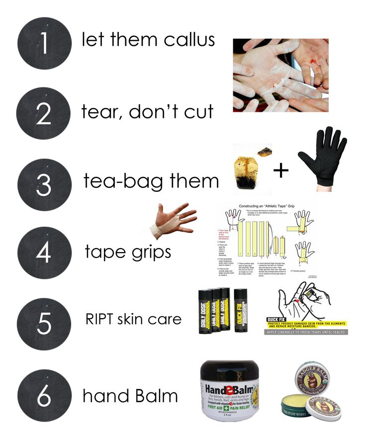 """Healing rips. ---> Recently found the tea bag tip, and the tearing rather than cutting the ripped skin makes sense (even if """"ouch"""")... Love the tape grip diagram."""