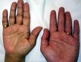 best 20+ addison's disease symptoms ideas on pinterest | addison's, Cephalic Vein