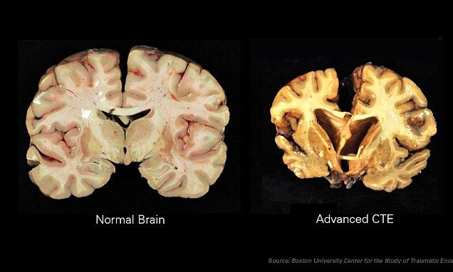 The first-ever football medical guide released this week includes information about chronic traumatic encephalopathy (CTE), a severe brain injury caused by repeated blows to the head.