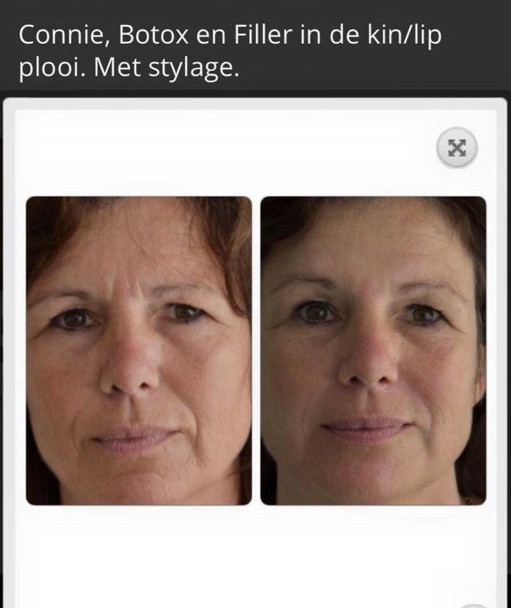 In deze foto kan je zien hoe onze modellen binnen 5 minuten er minder moe uit gaan zien en tevens ook minder fijne lijntjes in het gezicht hebben. Wil je dat ook? Minder rimpels en er jongen uit gaan zien, binnen een paar minuten? Dan hebben wij de oplossing, kom binnenkort naar een van onze locaties, Den Bosch of Zandvoort, voor een gratis intakegesprek.Tel.: 023 844 6922 Email.: info@beautyboxinjectables.nl www.beautyboxinjectables.nl