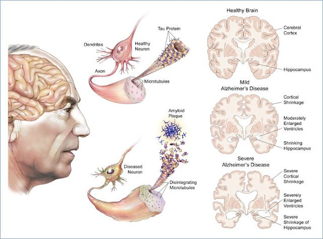 "UC Davis researchers have found novel compounds that disrupt the formation of amyloid, the clumps of protein in the brains of people with Alzheimer's disease believed to be important in causing the disease's characteristic mental decline. The so-called ""spin-labeled fluorene compounds"" are an important new target for researchers and physicians focused on diagnosing, treating and studying the disease."