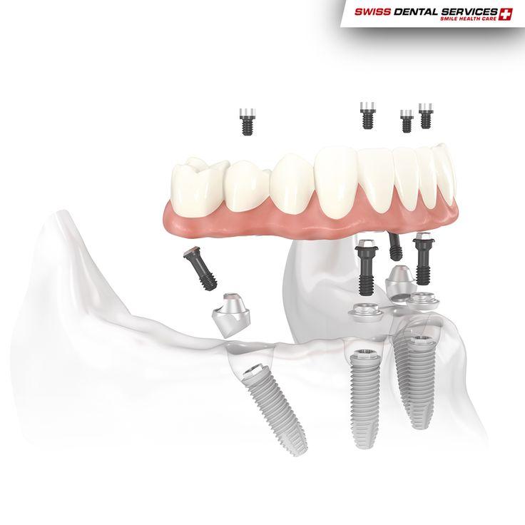 La technique All-On-4 est une solution fantastique, sans greffes, qui fournit aux patients une prothèse fixe complète le jour-même de la chirurgie.-------------------------------------------- www.swissdentalservices.com/fr #dentiste #implants #sourire #clinique (Pour plus d'informations ou pour organiser une consultation d'évaluation, envoyez vos coordonnées par message privé)