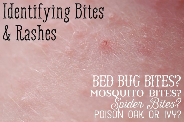 Learn about the differences between mosquito, bed bugs, and spider bites, and rashes from poison oak or ivy. Compare these pictures to find out what bit you and if that rash could mean bed bugs.