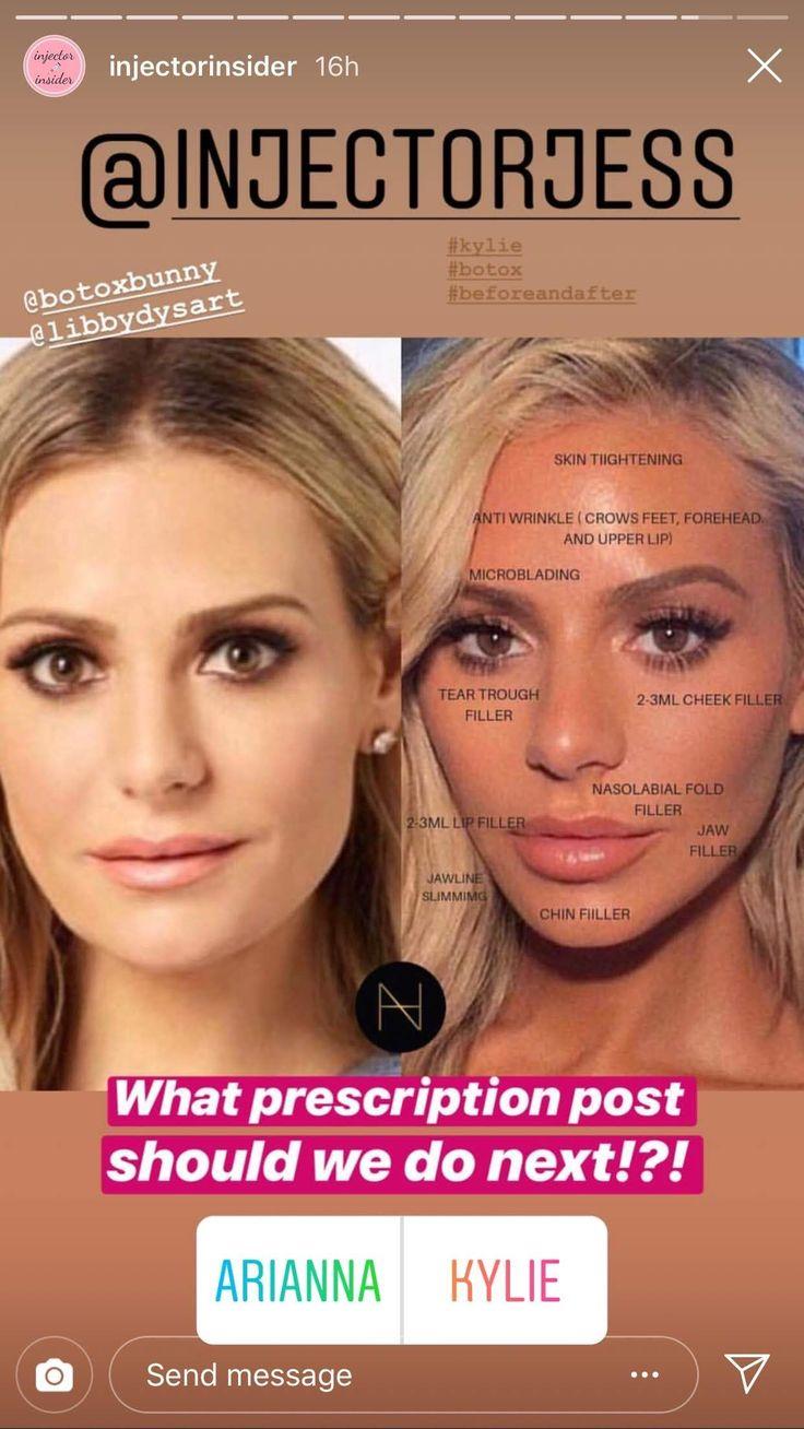Pin von Karen auf Nose job in 2020 Botox behandlung