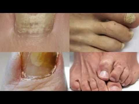 treat toenail fungus easily right from home by watching this short youtube video. it will save you a lot of time, money, and trip to the doctors office by following the tips in this video.