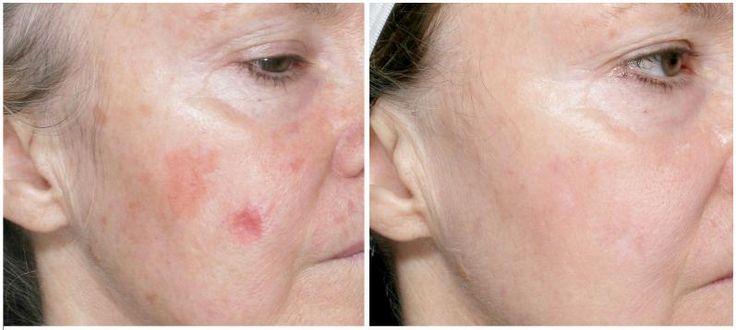 Repairing Facial Sun Damaage