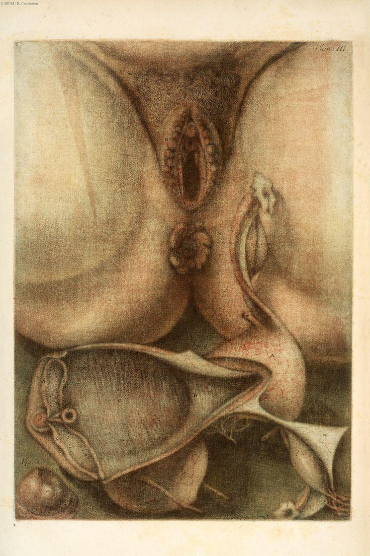 Jacques Fabien Gautier d'Agoty. Planche III. Exposition anatomique des maux vénériens, sur les parties de l'homme et de la femme, et les remèdes les plus usités,... par M. Gautier Dagoty... Paris : J.-B. Brunet : Demonville, 1773 (https://www.pinterest.com/pin/287386019949696207).