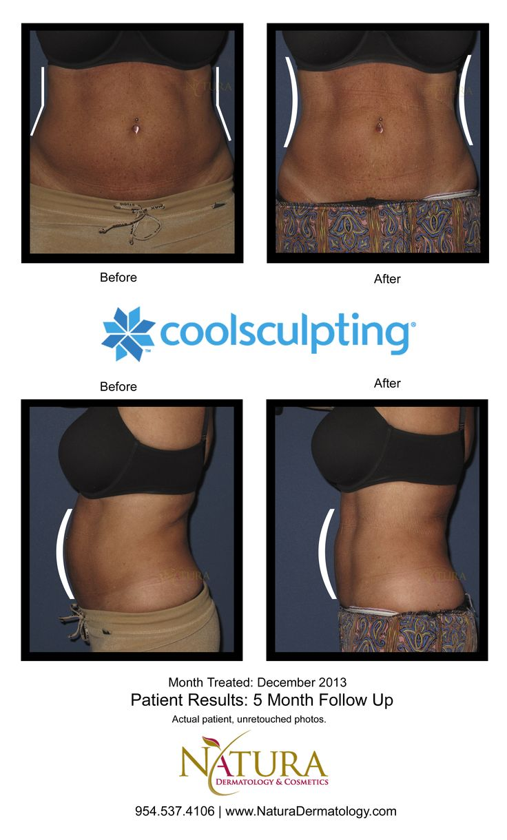 CoolSculpting before and after photos of a female patient, five months after treatment. Contact us for your free CoolSculpting consultation at either our Fort Lauderdale or Coconut Creek office! 954.537.4106