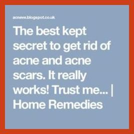 Acne Scar Removal - 7 Pimple Scar Removal Techniques * More details can be found by clicking on the image. #hudabeauty
